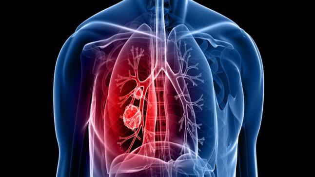 كيف يتم تشخيص سرطان الرئة في ألمانيا؟